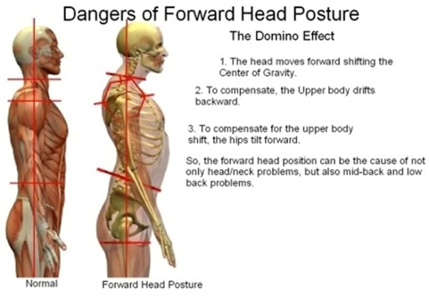 Forward-Head-Posture.167ea62904dd445688976b3b65c96f1c