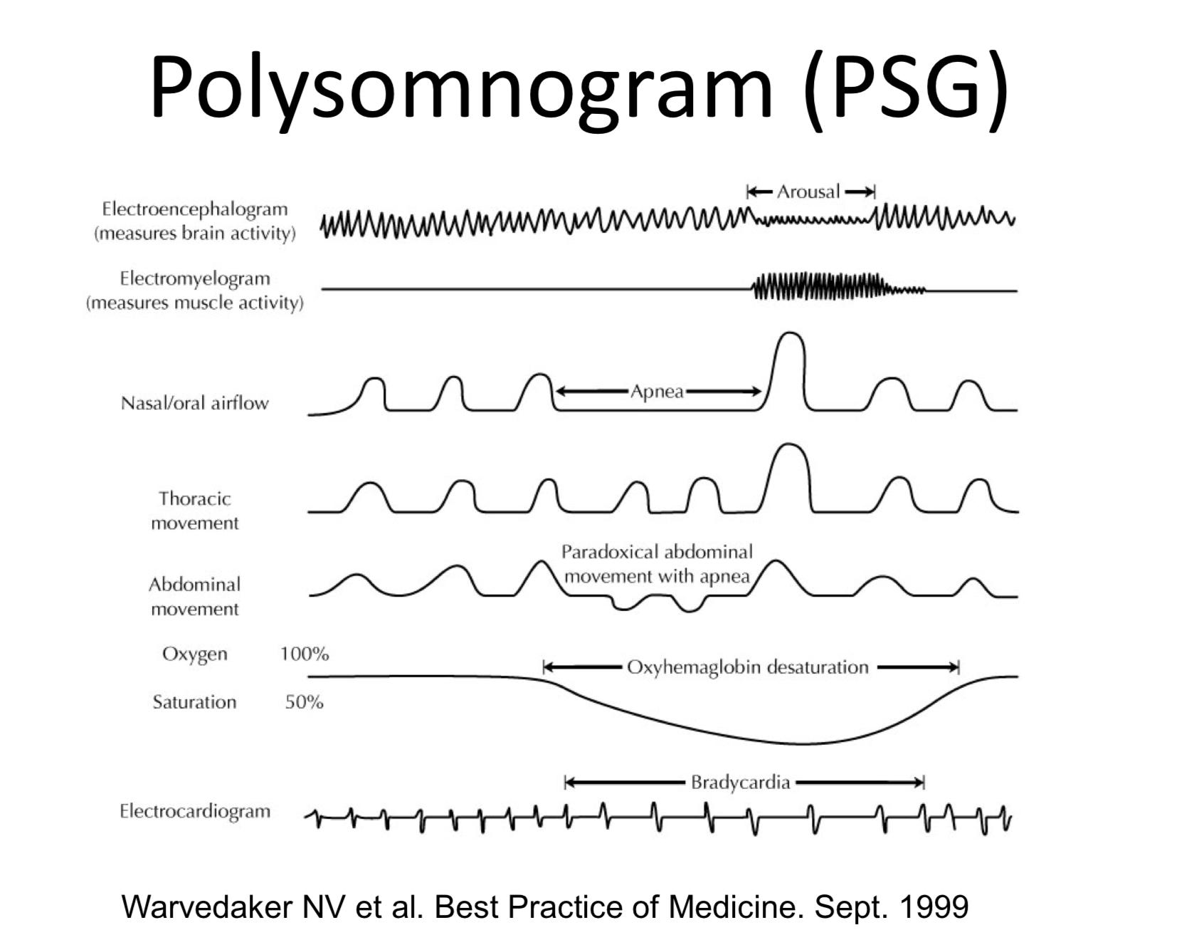 / Polysomnogram s vyznačením typických příznaků epizody spánkové apnoe /